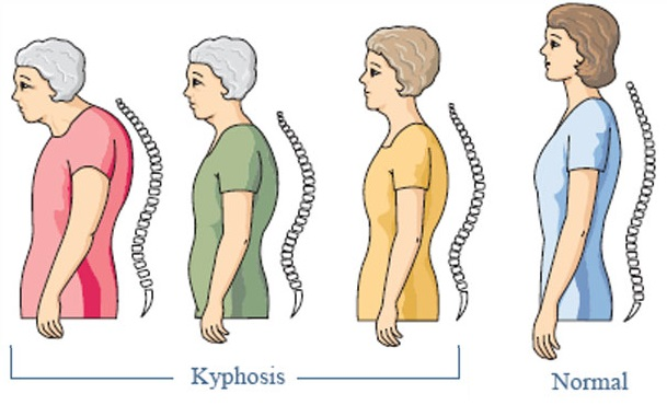 Proximal junctional kyphosis in thoracic adolescent idiopathic scoliosis: Risk factors and compensatory mechanisms in a multicenter national cohort