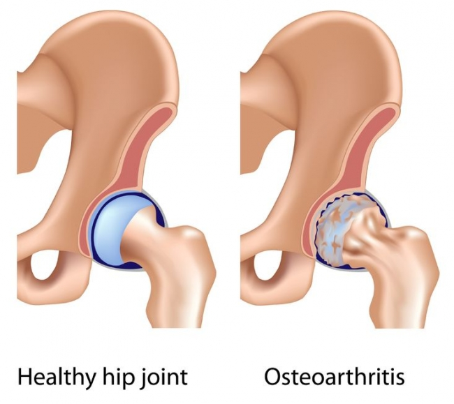 Individuals with mild-to-moderate hip osteoarthritis have lower limb muscle strength and volume deficits