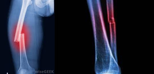 What is a spiral fracture? Causes and treatment