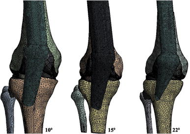 Predicting meniscal tear stability across knee-joint flexion using finite-element analysis