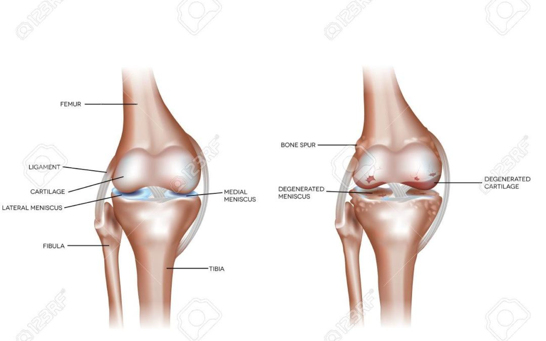 Initial tissue repair predicts long-term clinical success of knee joint distraction as treatment for knee osteoarthritis