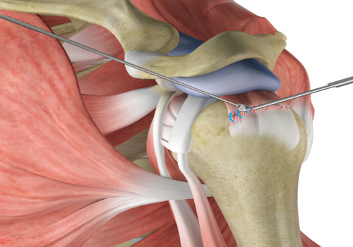The clinical outcomes and their associated factors in staged bilateral arthroscopic rotator cuff repair