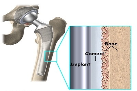 Long-term results of revision total hip arthroplasty with a cemented femoral component