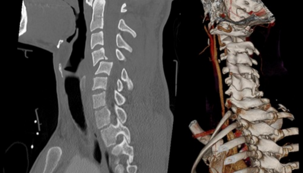 CNS releases new clinical practice guidelines for thoracolumbar spine trauma