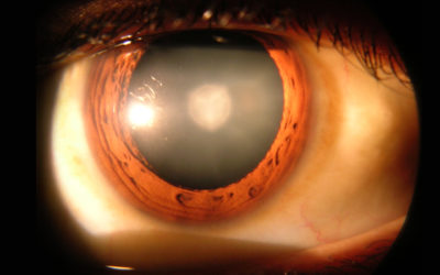 CATARACTS LINKED TO OSTEOPOROSIS, FRACTURE?