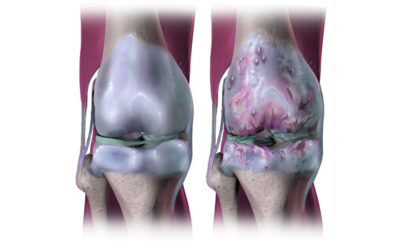 MOLECULE PROTECTS CARTILAGE FROM DAMAGE DURING OSTEOARTHRITIS?