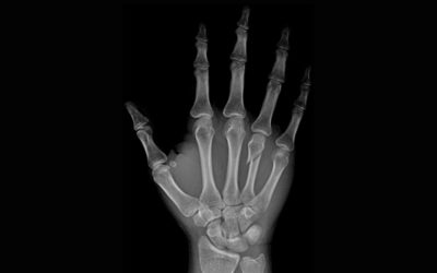 PRIOR FRACTURE SYSTEMICALLY RAISES FRACTURE RISK