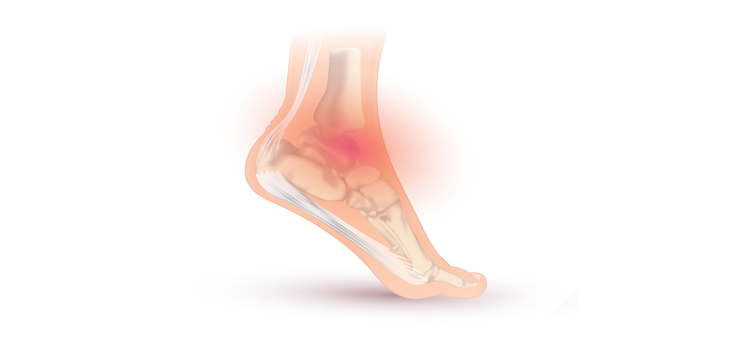 RESEARCHERS FIND NEW OSTEOCHONDRAL ANKLE LESION TREATMENT
