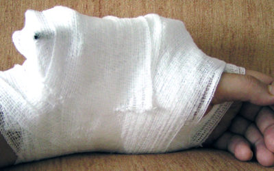 STUDY: UNUSUALLY HIGH CHANCE OF SECONDARY FRACTURES IN MEN