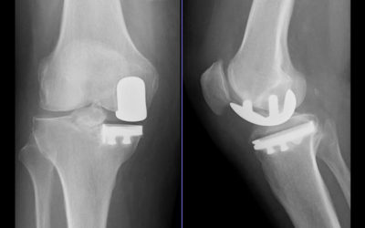 UNICOMPARTMENTAL KNEE ARTHROPLASTY FOR ALL PATIENTS?