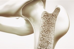 Study finds strong link between bisphosphonates use and risk of atypical femoral fractures