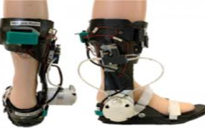 Global Foot & Ankle Devices Market Growth 2018-2023