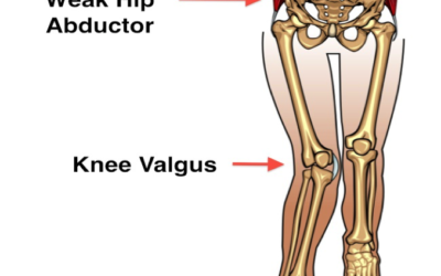 Greater hip abductor strength improves long-term function in knee OA