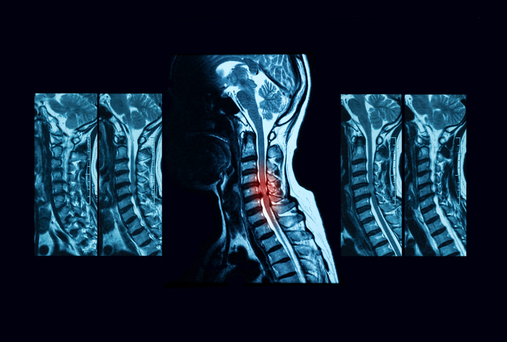 Fragility fracture risk in elderly patients with cervical myelopathy