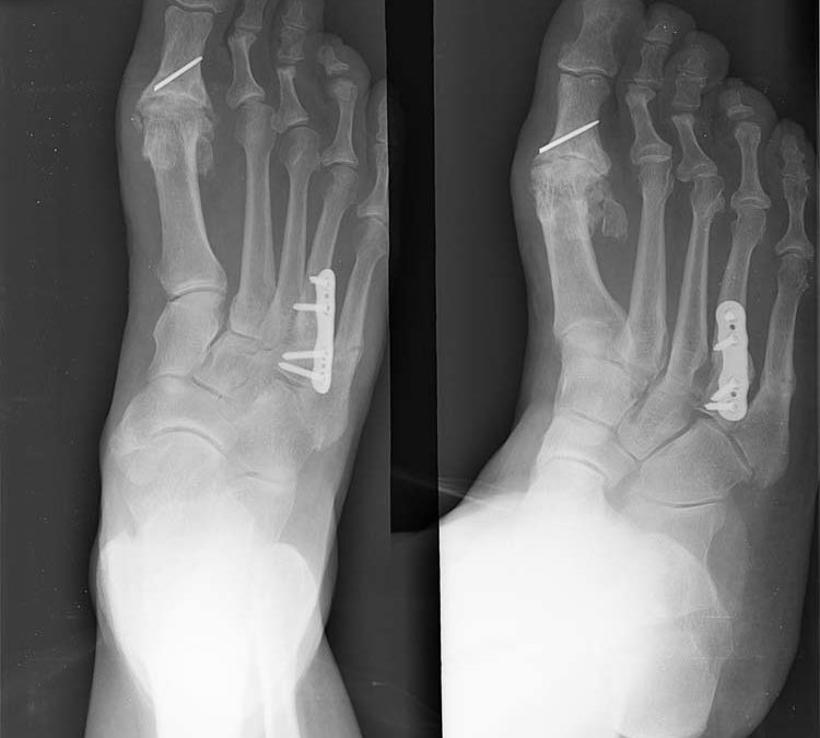 The surgical outcome of Lisfranc injuries accompanied by multiple metatarsal fractures