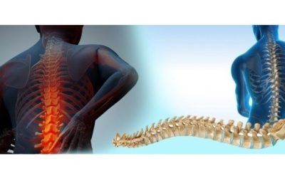 Spine Biologics Market Share will Increase US $2.5 Billion by 2022
